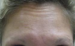 female patient after botox treatment