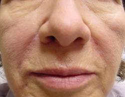 female patient after Juvederm treatment