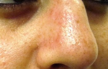 female patient after nose mole removal