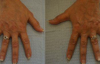 Hands of an old woman after a Radiesse filler
