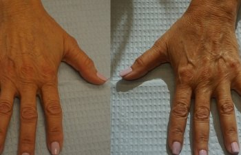 Hands of an old woman before a Radiesse filler