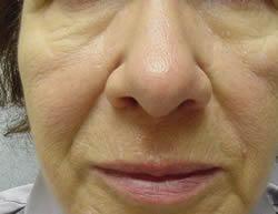 female patient before Juvederm treatment