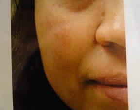 female patient after mole removal