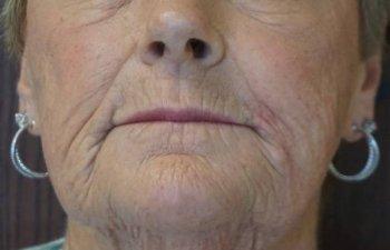 Mohs - upper lip