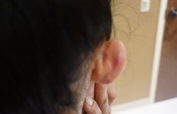 Keloid After